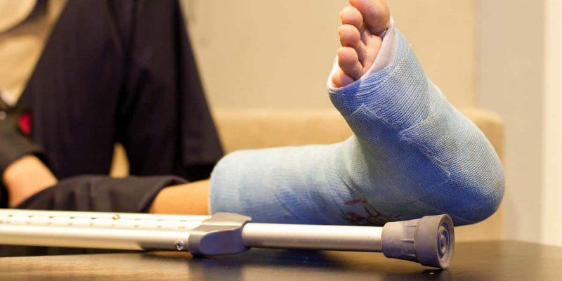 Broken Leg with Crutches