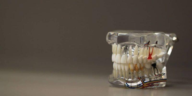 Dentistry Teeth Dentures