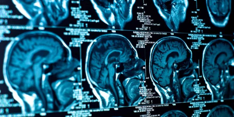 Head and Brain Injury X Ray